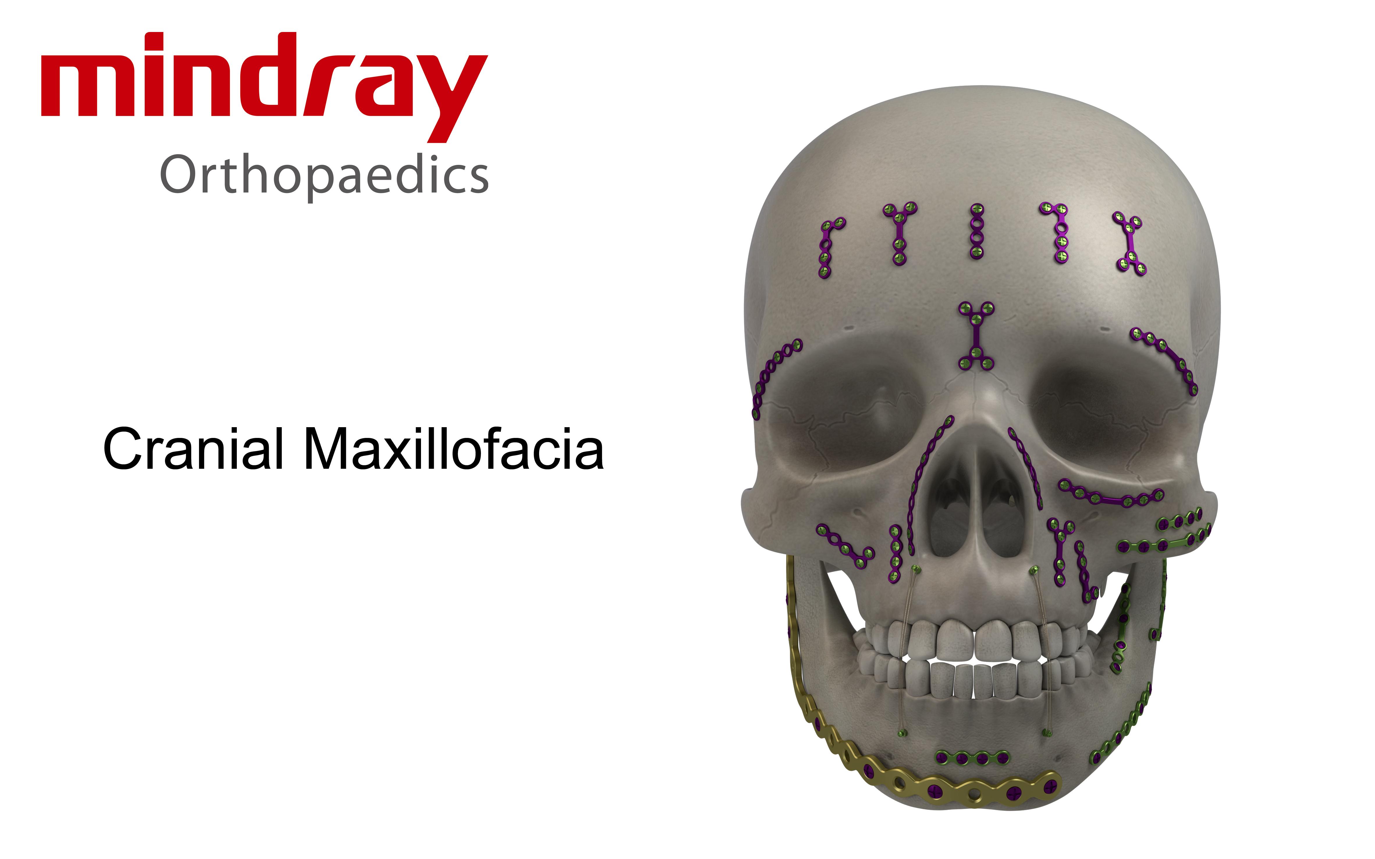 CMF口腔頜面外科內固定